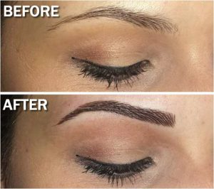 Eyebrows treatment